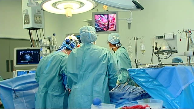 massive increase in number of organ donations t15021329 / tx surgeons during heart surgery operation blood transfusion equipment - blood bag stock videos & royalty-free footage