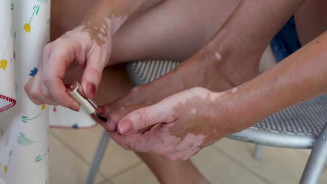 vídeos y material grabado en eventos de stock de mujer madura con vitiligo pulir sus uñas de los pies en rojo. mujer con enfermedad de la piel sentada en el balcón y haciendo pedicura - esmalte de uñas rojo