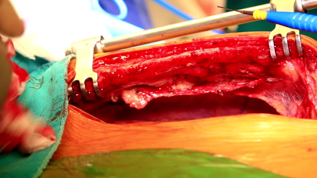 median sternotomy incision for open heart surgery - sternum stock videos & royalty-free footage