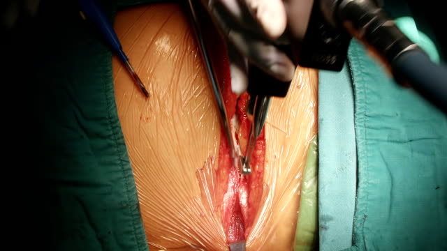 stockvideo's en b-roll-footage met median sternotomy - thoracic cavity