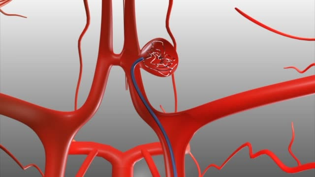 3d medical animation - coil embolization for cerebral aneurysm - human artery stock videos & royalty-free footage
