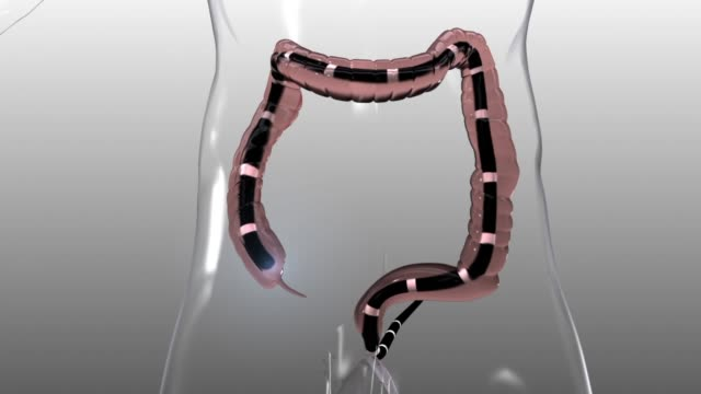 3d medical animation - colonoscopy - biomedical animation stock videos & royalty-free footage