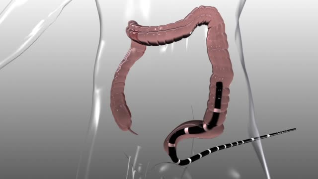 3d medical animation - colonoscopy - biomedical animation video stock e b–roll