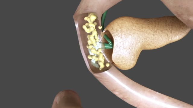 3d medical animation - duodenum, pancreas and bile duct - common bile duct stock videos & royalty-free footage