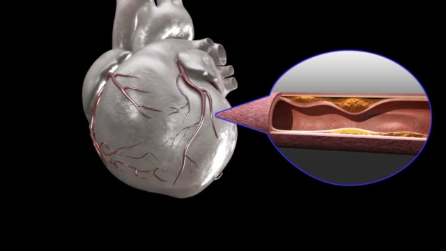 3d medical animation - ischemic heart disease - human heart stock videos & royalty-free footage