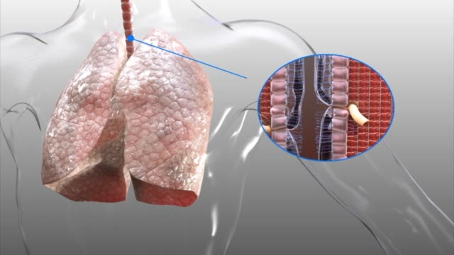 3d medical animation - lungs and trachea (windpipe) - biomedical illustration stock videos & royalty-free footage