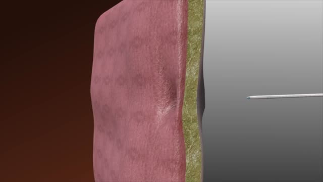 3d medical animation - percutaneous catheter drainage - surgical scissors stock videos & royalty-free footage