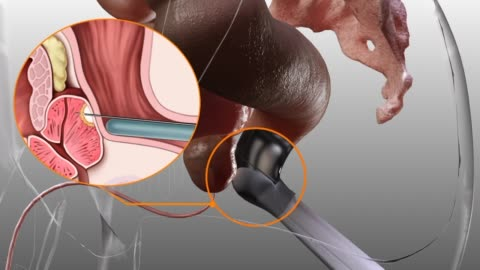 3d medical animation - prostate biopsy - harnapparat stock-videos und b-roll-filmmaterial