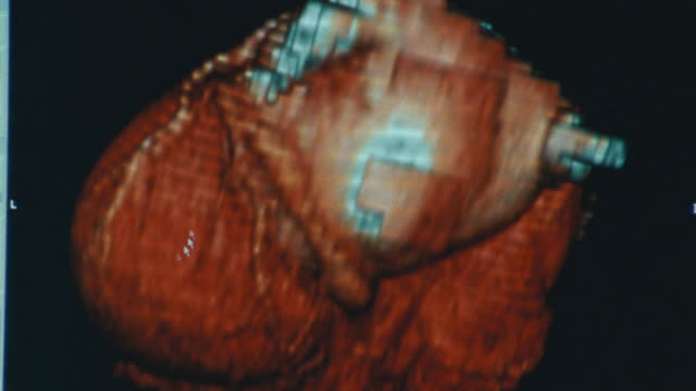 3D medical diagnostic image of the human heart.