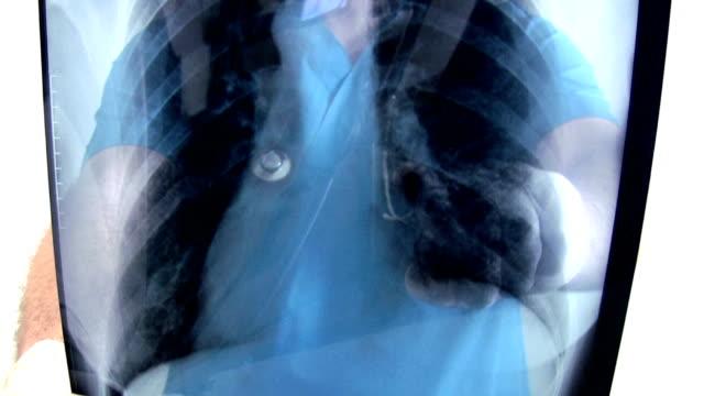 medical doctor - människolunga bildbanksvideor och videomaterial från bakom kulisserna