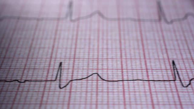 medical ecg graph. - rhythm stock videos and b-roll footage