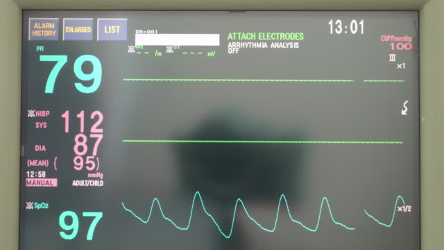 Medical equipment screen of vital signs