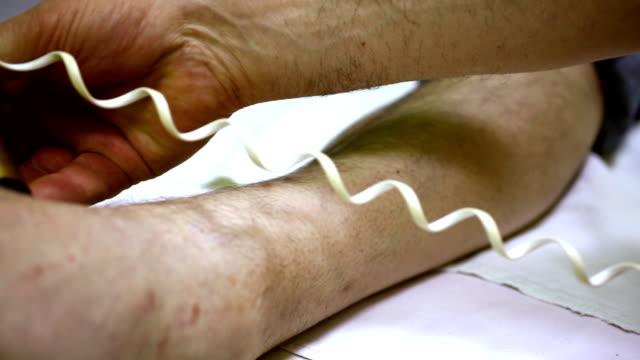Medical laser treatment.