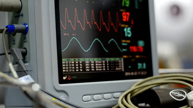 medical monitor - pulse trace stock videos & royalty-free footage
