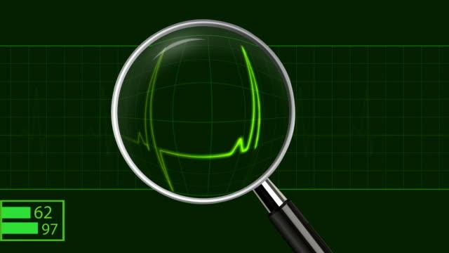 vídeos y material grabado en eventos de stock de escán médico-centro supervisar/hd1080 en bucle - lupa