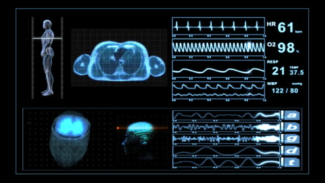 medical scanner mri xray monitor display - biomedical animation stock videos & royalty-free footage