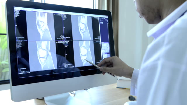 medical staff examine x-ray - injured stock videos & royalty-free footage