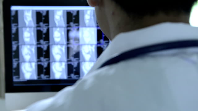 医療スタッフが、x 線検査 - x線撮影点の映像素材/bロール