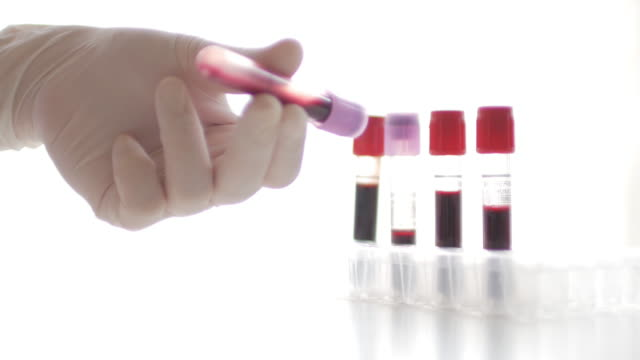Medical technician shaking Blood in red test tube at laboratory white room background , 4k(UHD)