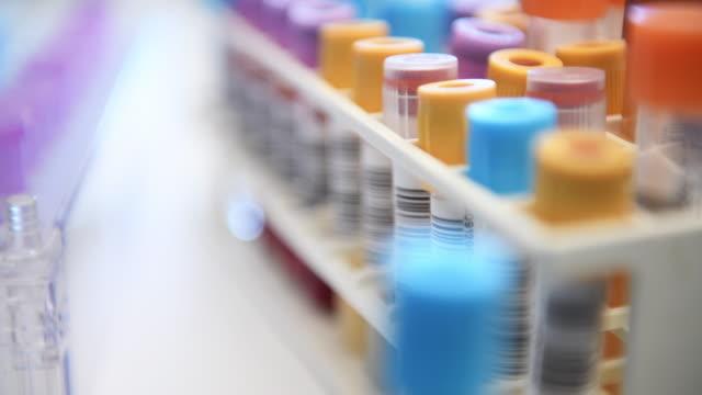 stockvideo's en b-roll-footage met medical testing of human samples in the laboratory - medicijnflesje