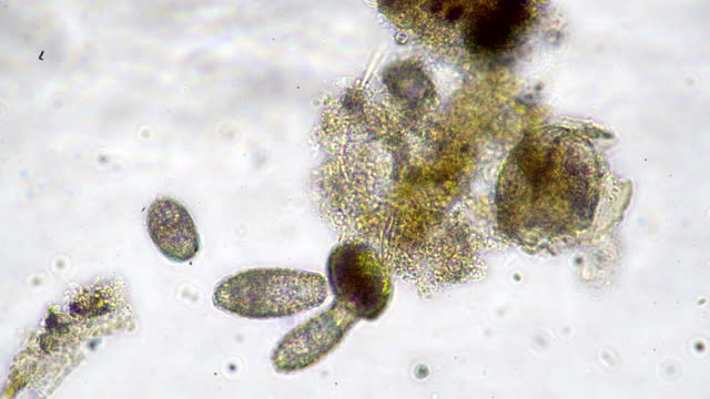 medical video (microscopic view) - struttura cellulare video stock e b–roll
