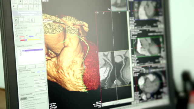 Medicine. Cardiac computed tomography (CT).