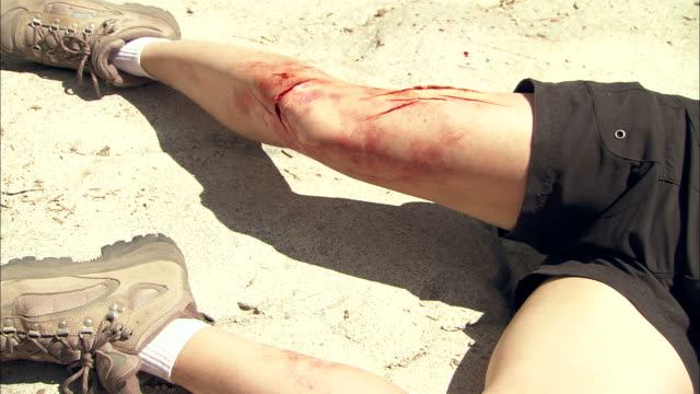 medium close up static - bloody scrapes mark the leg and knee of a hiker as he lies on the ground - physical injury stock videos and b-roll footage