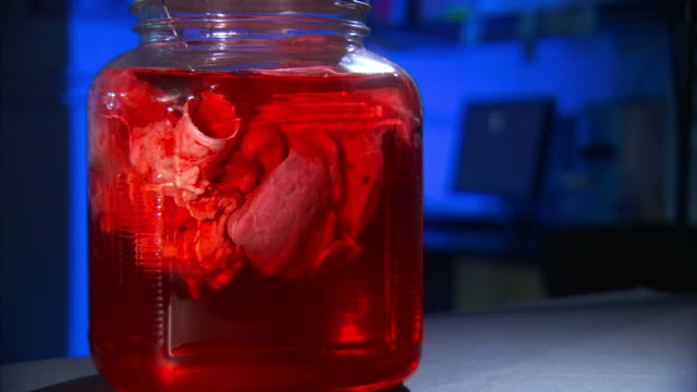 Medium Close Up_static - A glass jar holds a human organ suspended in red liquid.