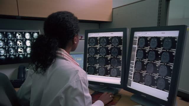medium shot female doctor examining brain scan on computer monitors/ panama city, panama  - diagnostic medical tool stock videos and b-roll footage