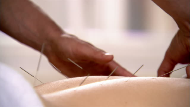 medium shot pan acupuncturist inserting needles into woman's back - mole skin stock videos and b-roll footage
