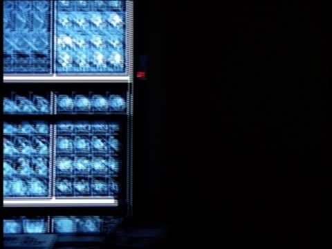 Medium shot pan doctors looking at wall of x ray displays on monitors