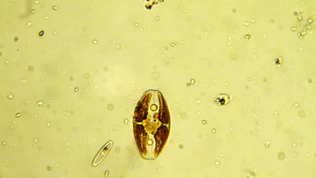 stockvideo's en b-roll-footage met micro organism: diatom - high scale magnification