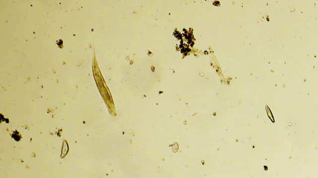 micro organism: euglena - protozoan stock videos and b-roll footage
