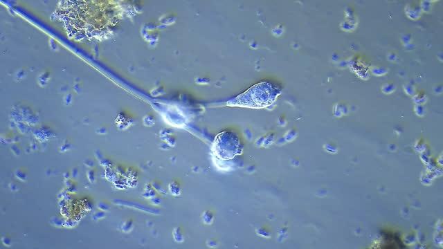 vidéos et rushes de micro-organisme - vorticella - paramécie