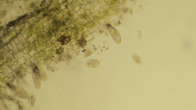 micro organisms eating particle of plant - paramecium caudatum stock videos and b-roll footage