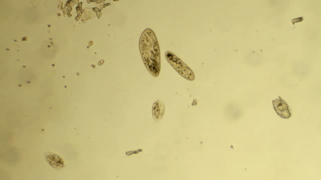 """vídeos de stock, filmes e b-roll de micro-organismos no """"amor"""" - protozoário"""