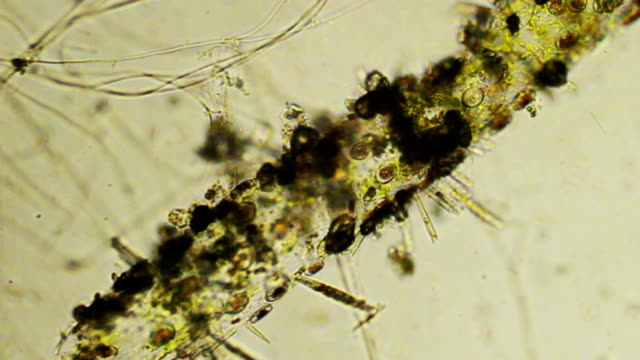 micro organisms - microbiology stock videos & royalty-free footage