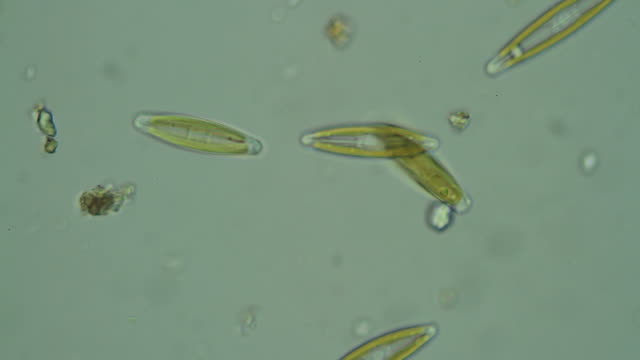 Microbe in dirty water