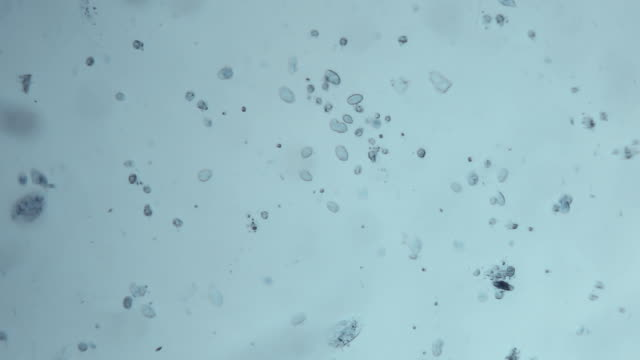 microbes background - microscope stock videos & royalty-free footage