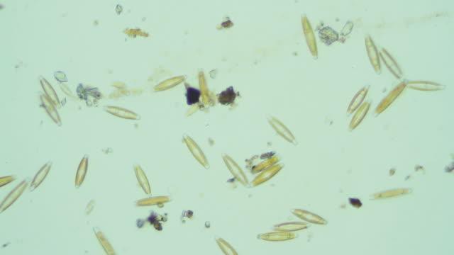 microbes in dirty water - micro organism stock videos & royalty-free footage