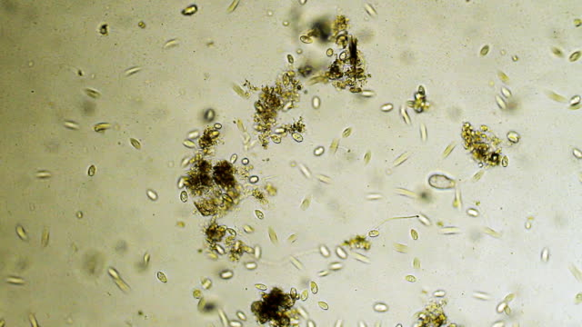microbes - protozoan stock videos and b-roll footage