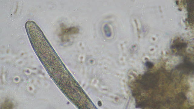 microbes - micrografia video stock e b–roll