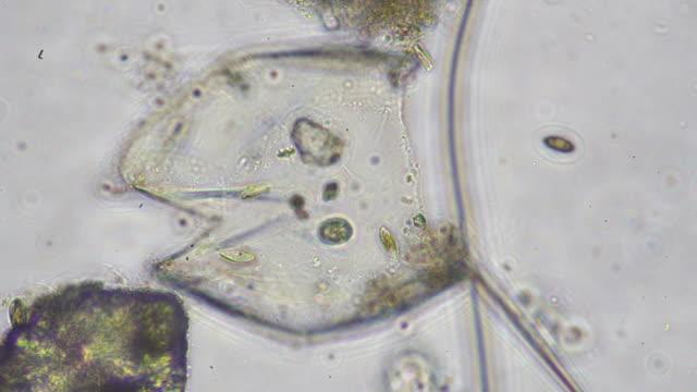 vídeos y material grabado en eventos de stock de los microbios - micrografía de luz