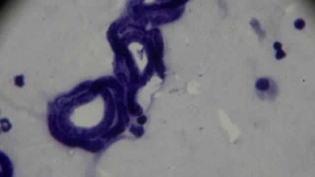 vídeos de stock, filmes e b-roll de microfilarêmicos malayi sob microscopia de luz - micrografia