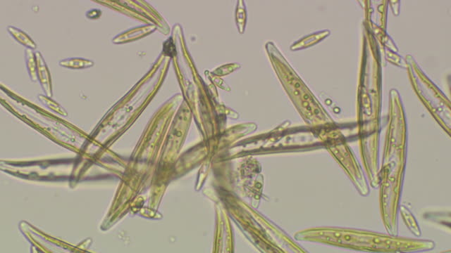 Micrography of marine diatoms, mostly Gyrosigma sp., Diatoms are a type of marine alga, and form a substantial part of the phytoplankton. Diatom cells are encased in a wall of silica called a frustule