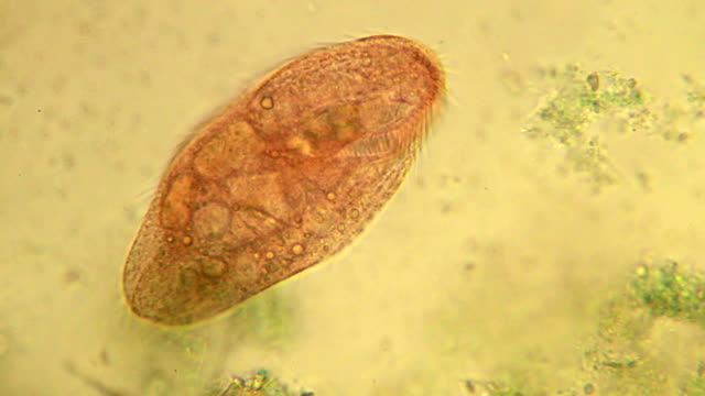 microorganism - ciliate - protozoan stock videos and b-roll footage