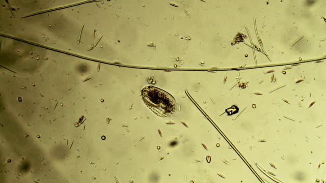 vídeos y material grabado en eventos de stock de microorganismos: euplote - micrografía de luz