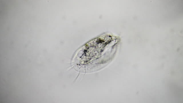 microorganism - euplotes - protozoan stock videos and b-roll footage