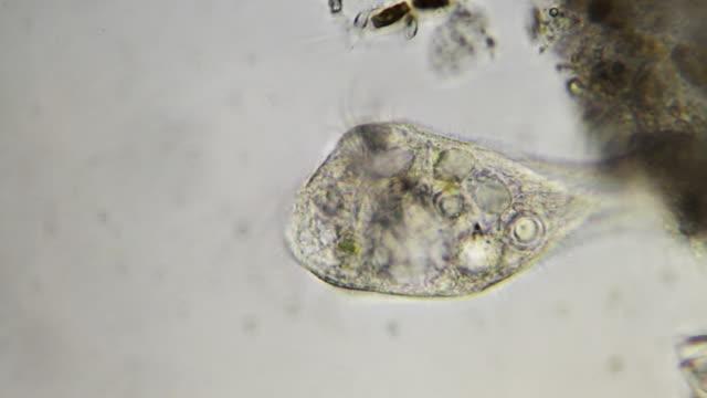 stockvideo's en b-roll-footage met microorganism - stentor - high scale magnification