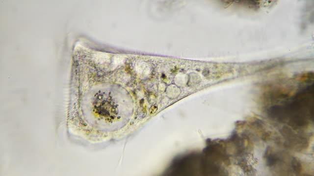 微生物-stentor - high scale magnification点の映像素材/bロール